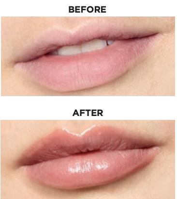 Glimmer Lip Plumper